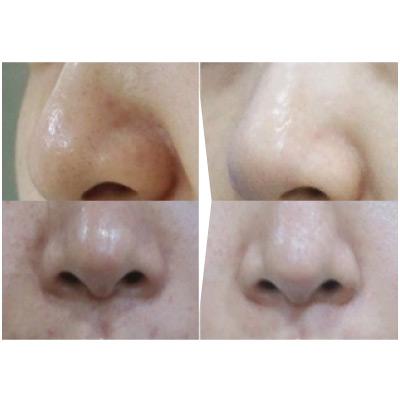AquaPeel до и после 4