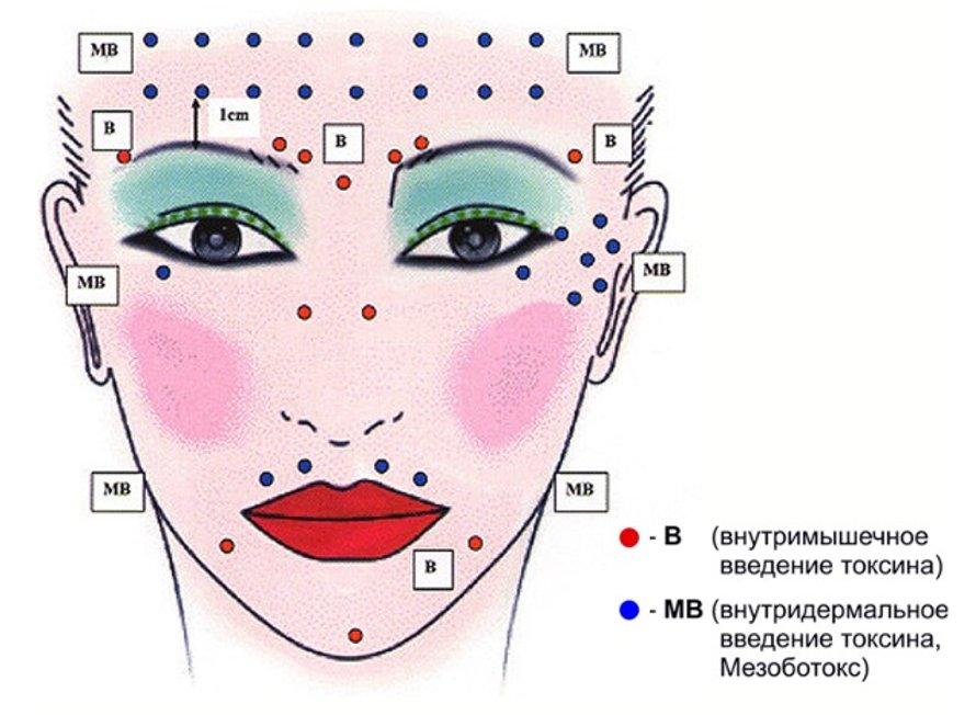 Рисунок 4 – Зоны введения токсинов внутримышечно (красный) и внутридермально (синий