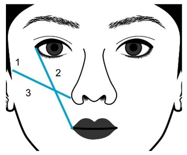 Рисунок 5 – Зоны введения филлеров ГК для увеличения объема скул