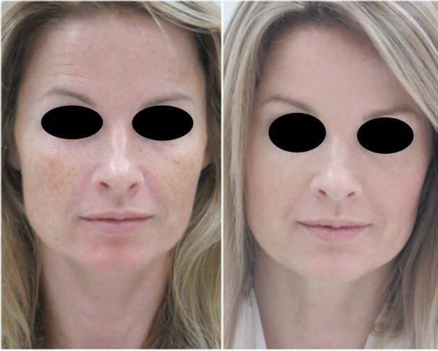 Пациентка в возрасте 42 лет с первыми признаками старения. После двух сеансов лечения FRM