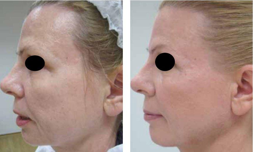 Пациентка 58 лет, до и после процедуры FRM